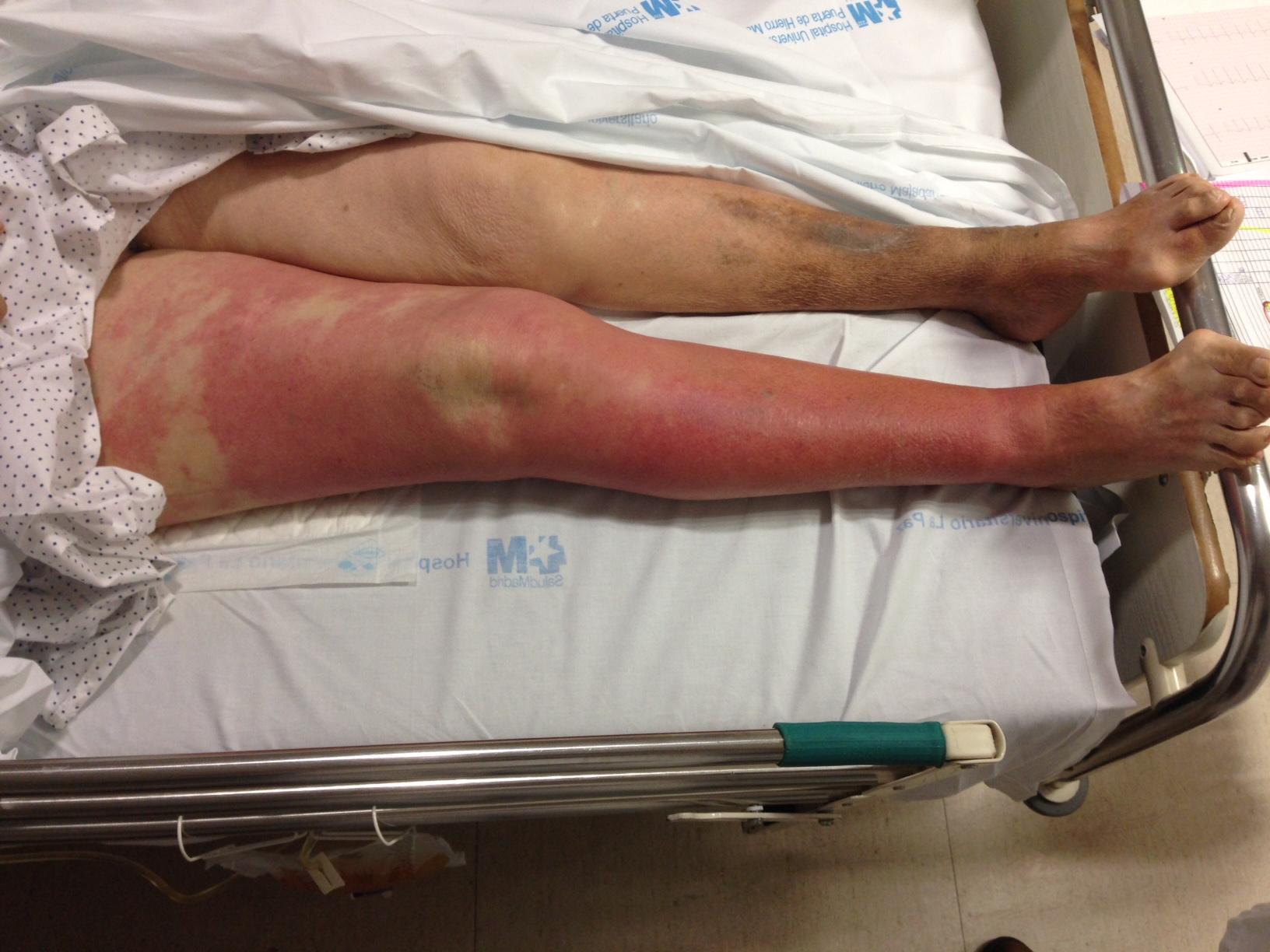 guia infeccion de piel y partes blandas