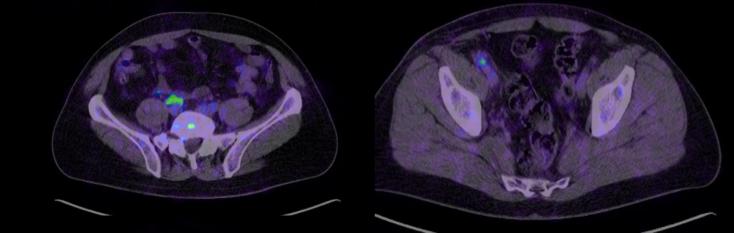 Figura 2. Imágenes de PET TC en las que se observan adenopatías patológicas con hipercaptación a nivel inter aorto-cava (2a) e ilíaca común derecha (2b)